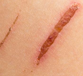 10-dic-2015-Cicatrices