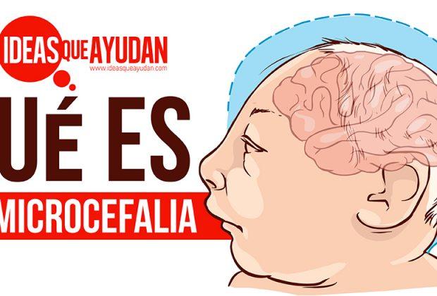 Qué es la microcefalia