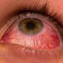 La contaminación aumenta casos de conjuntivitis