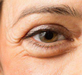 ¿Qué provoca la formación de ojeras y bolsas debajo de los ojos?