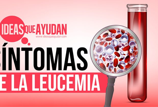 Síntomas de la leucemia