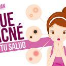 Qué dice el acné de tu salud
