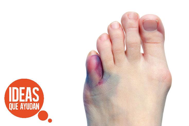 Cómo saber si te rompiste el dedo chuiquito del pie