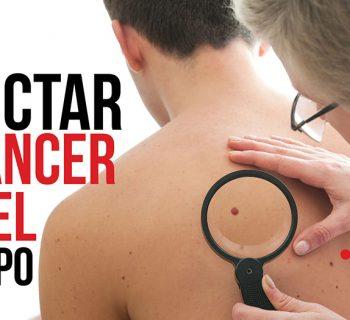 cómo detectar el cáncer de piel a tiempo