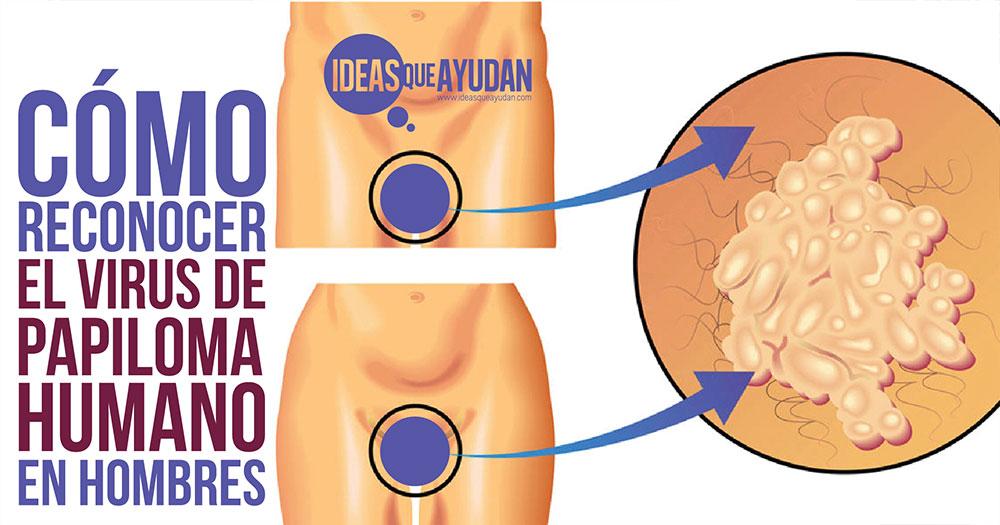 Como reconocer el virus del papiloma humano en hombres