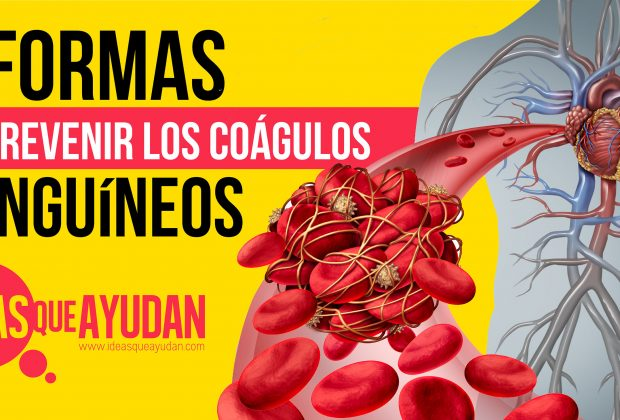 7 formas de prevenir los coágulos sanguíneos