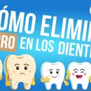 Cómo eliminar el sarro en los dientes